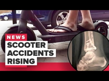 CNET: Electric scooter injuries on the rise (CNET News)